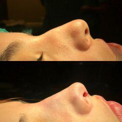 Rinoplastia Ultrasónica Ambulatoria, bajo anestesia local y sedación
