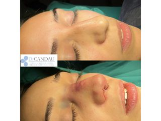 Antes y después Rinoplastia Ultrasónica Ambulatoria, bajo anestesia local y sedación