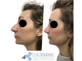 Antes y después Rinoplastia Ultrasónica (Anestesia Local y Sedación)