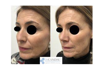 Antes y después Rinoplastia Ultrasonica Ambulatoria (post 6 semanas)