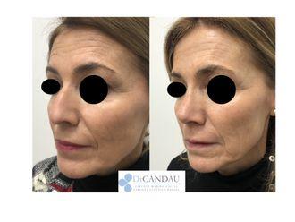 Cirugía estética-648325