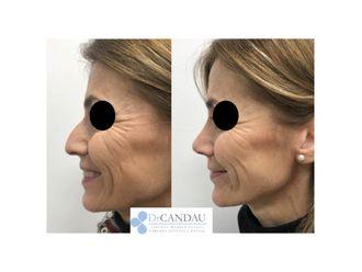 Cirugía estética-648326