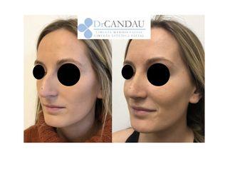 Cirugía estética-648522