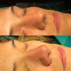 Antes y después Rinoplastia Ultrasónica Ambulatoria