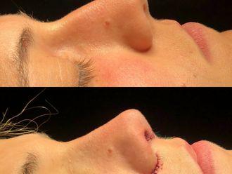Cirugía estética-661585