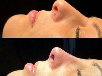 Cirugía estética-661586