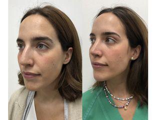 Antes y después Rinoplastia - Dr. Alberto Candau
