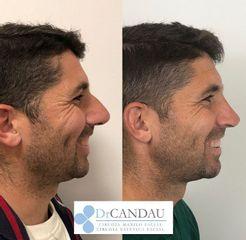 Rinoplastia - Dr. Alberto Candau