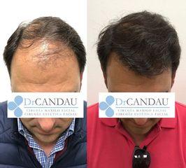 Trasplantes capilares - Dr. Alberto Candau
