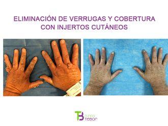 Verrugas-649628