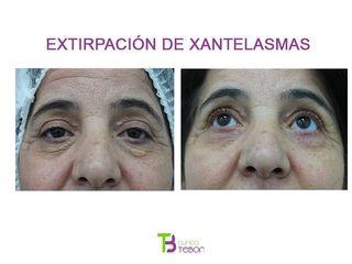 Xantelasmas - Clínica Tebon