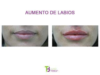 Aumento de labios - Clínica Tebon