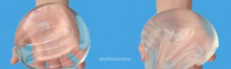 protesis-implantes-mamarios-contenido-gel-cohesivo-silicona-o-suero-300x162