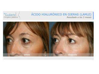 Medicina estética-629563