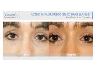 Ácido hialurónico-629564