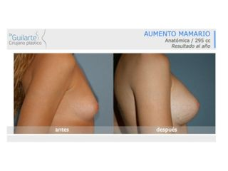 aumento-senos-clinica-cirugia-plastica-madrid-id009-001