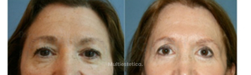 blefaroplastia-superior-inferior-transconjuntival-caso-real-doctor-guilarte-id006