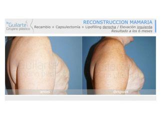 Reconstrucción mamaria-629571