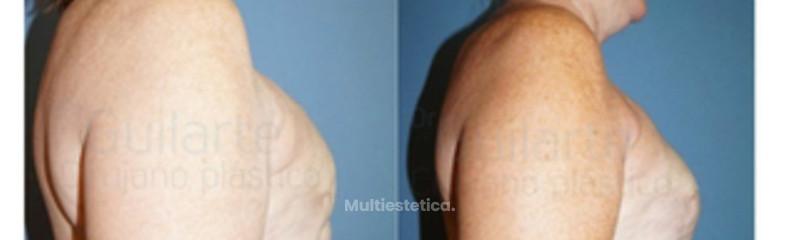 capsulectomia-lipofilling-elevacion-recambio-reconstruccion-pecho-madrid-id010