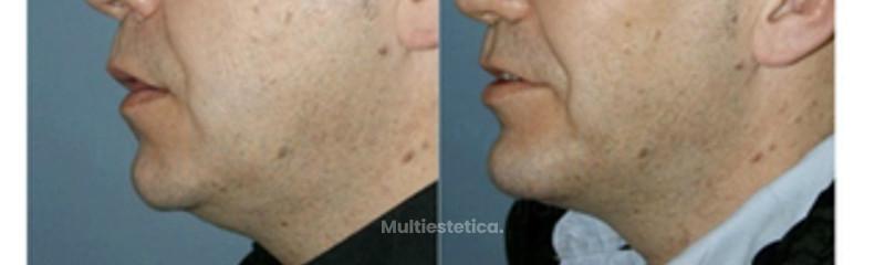 cirugia-menton-madrid-id002
