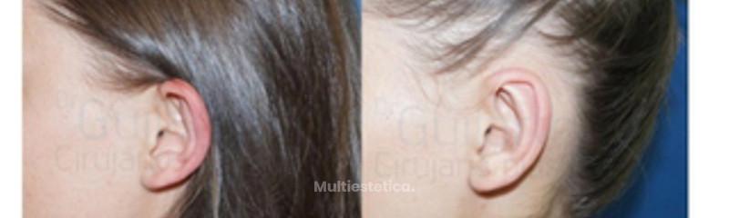 cirugia-orejas-foto-resultado-caso-real-recien-operado-id020