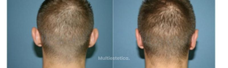 cirugia-orejas-madrid-id002