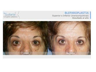 Blefaroplastia-629577