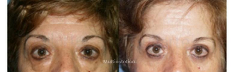 eliminar-bolsas-ojos-con-cirugia-estetica-blefaroplastica-id009