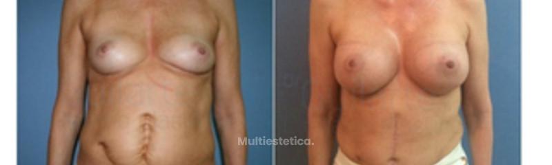 eliminar-cicatrices-con-abdominoplastia-madrid-id021