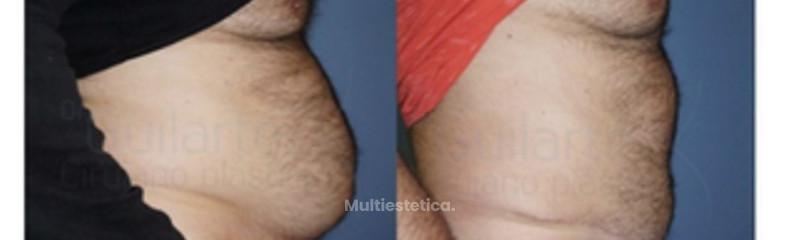 foto-abdominoplastia-masculina-cirugia-plastica-abdomen-hombre-id014-1