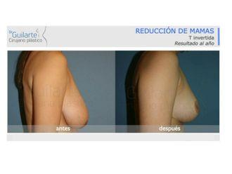 Reducción senos-629580