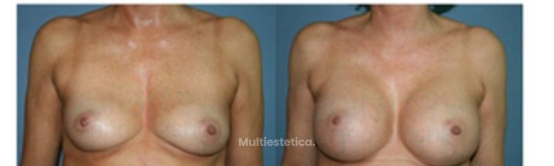 foto-antes-despues-mamoplastia-aumento-mujer-mediana-edad-protesis-anatomicas-330cc-id079-001