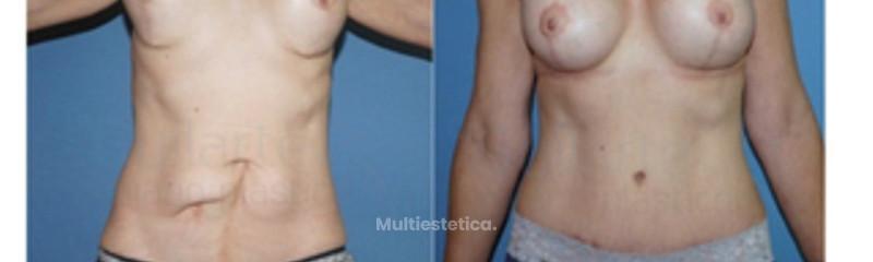 foto-antes-y-despues-cirugia-abdomen-abdominoplastia-eliminar-cicatrices-vientre-id080