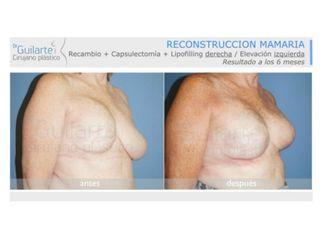 Reconstrucción mamaria-629583