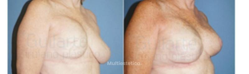 foto-antes-y-despues-cirugia-multiple-para-reconstruir-pecho-mujer-por-drguilarte-id009
