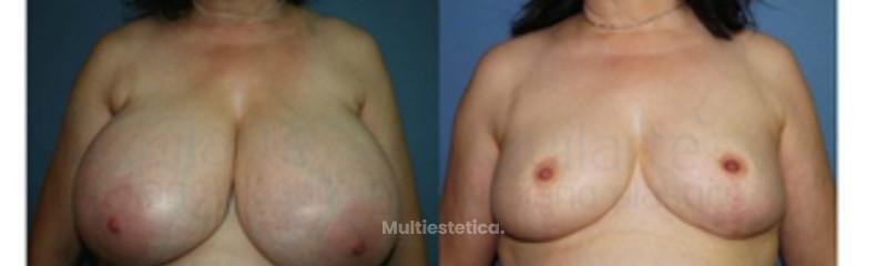 foto-pecho-mujer-antes-y-despues-reduccion-pecho-id007