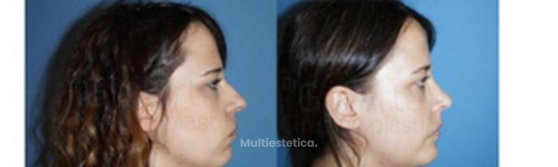 imagen-cara-perfil-resultado-rinoplastia-operada-dr-guilarte-id072