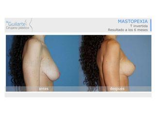 Mastopexia-629592