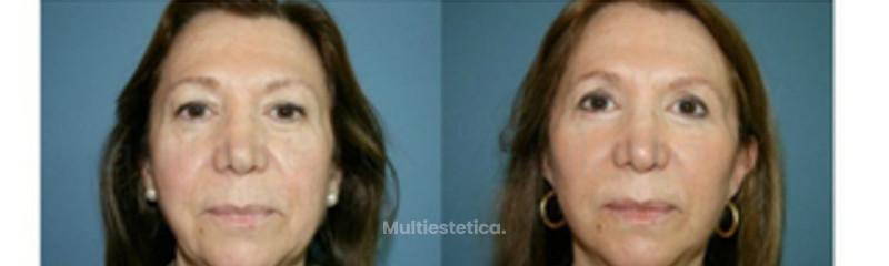 minilifting-madrid-plicatura-de-smas-blefaroplastia-resultado-6-meses-id006