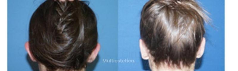 otoplastia-correccion-orejas-chica-joven-clinica-guilarte-id019