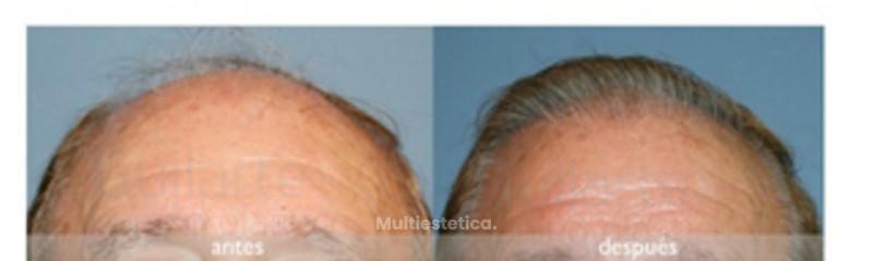 trasplante-pelo-madrid-caso-real-cirujano-plastico-dr-guilarte-foto-antes-y-despues-2000-unidades-fo