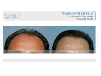 Trasplantes capilares-629606