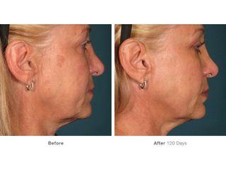 Antes y después HIFU - Dr. Daniel Colomer