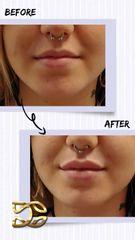 Aumento de labios - Dr. Daniel Colomer