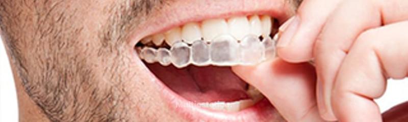 Ortodoncia invisible DENTAestetic+ dental