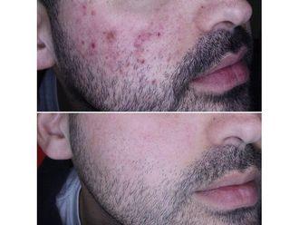 Tratamiento antiacné - 649984