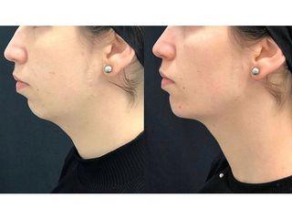 Full face con Ácido hialurónico