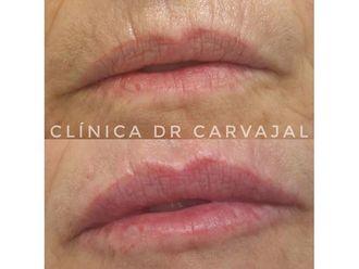 Aumento labios-649994