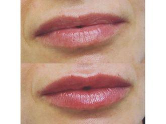 Aumento labios-649997