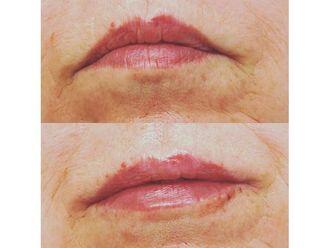 Aumento labios - 649998